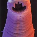 Hookworm_head